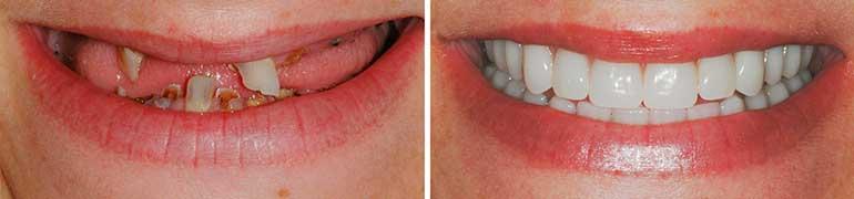 Способ имплантации зубов All-on-4